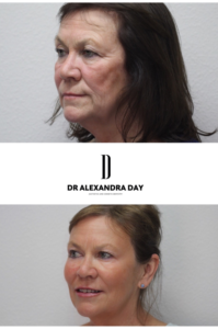 Dr-Day-Fillers